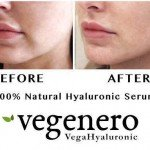 VegaHyaluronic Before After