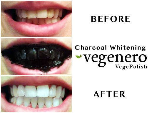 VegaPolish-Charcoal-Teeth-Whitening-Polish