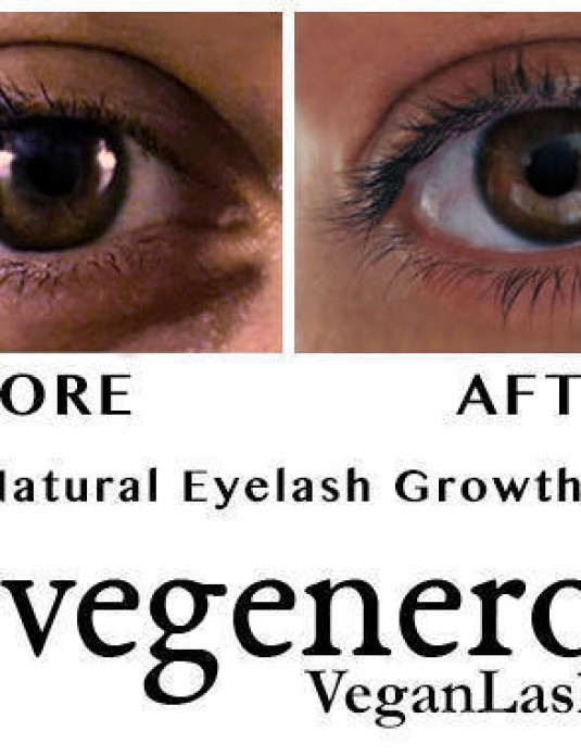 Vegan Lash Natural Eyelash Growth & Eyebrow VegaLash Serum Before and After